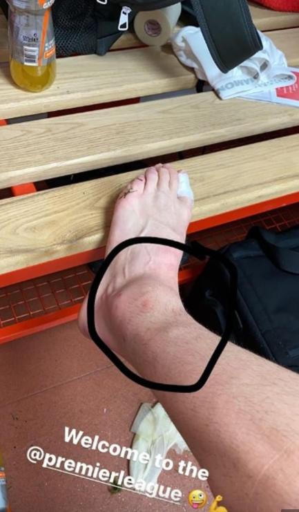 比赛够激烈!范德贝克晒脚踝肿胀图并调侃:欢迎来到英超