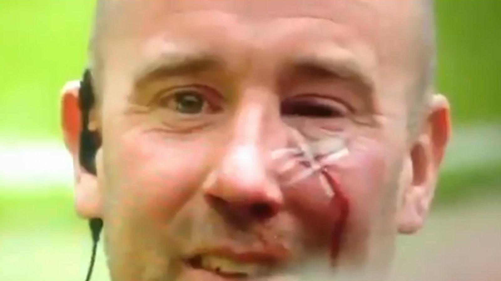 和平示威?球迷拖拽和殴打警察,6人受伤,1名球迷已被逮捕插图