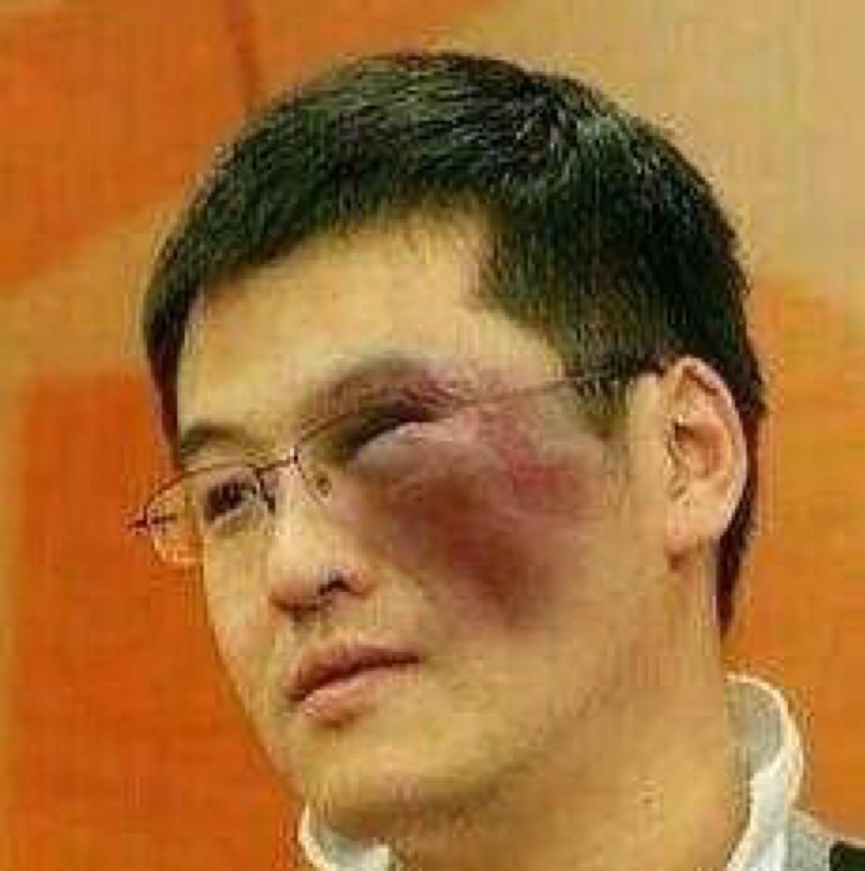 杨毅脸又肿了